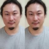 『美容室サロン.ド.フー. 松島 康弘様 美容鍼の体験へお越しくださいました。』の画像