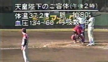【画像】昭和天皇 崩御前のテレビってよくこうなっていたよな けっこう怖い