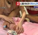心臓が体の外に出た状態で生まれた赤ちゃん、3度の手術無事乗り越える 生存率1割