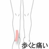 『足首周辺の痛み 室蘭登別すのさき鍼灸整骨院 症例報告』の画像