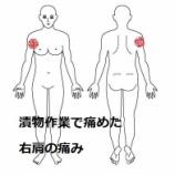 『≪1週間前に漬物石をもって痛くなった右肩の痛み≫』の画像