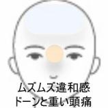 『鼻炎を伴う頭痛 室蘭登別すのさき鍼灸整骨院 症例報告』の画像