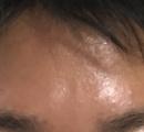 顔の脂がヤバすぎて目に入って痛くてたまらん