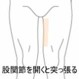 『股関節を開くことが出来ない すのさき鍼灸整骨院症例報告』の画像