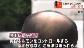 理研、髪の毛を作り出す「毛包」を大量に作る技術の開発に成功