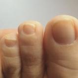『30年物の巻爪、その後(3ヶ月経過)』の画像