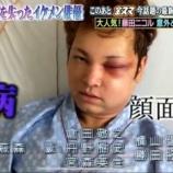 『間瀬翔太の病気 顔面崩壊した難病の脳動静脈奇形画像がやばい』の画像