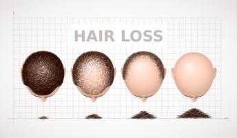 禿げるメカニズムについて詳しく解説してやる