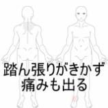 『足首の痛み 室蘭登別すのさき鍼灸整骨院 症例報告』の画像