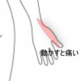 『産後の腱鞘炎 室蘭登別すのさき鍼灸整骨院 症例報告』の画像