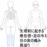 『PMS【生理前症候群】でお悩みの方、必見です!すのさき鍼灸整骨院、症例報告です。』の画像