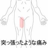 『開脚動作で痛めた脚 室蘭登別すのさき鍼灸整骨院 症例報告』の画像