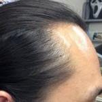 「薄毛は個性」「あなたに足りないのは髪の毛ではなく自信」