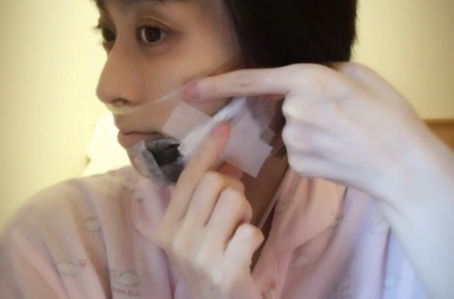 【画像】小林麻央さん(34)の癌がついに顎に転移・・・・・・のサムネイル画像