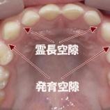 『子供の歯並びについて【篠崎ふかさわ歯科クリニック】』の画像