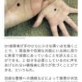 【画像】DV被害の女性がTwitterで「ヘルプ画像」