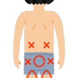 『腰痛にもいろいろな種類があるってホント?!』の画像