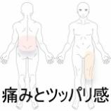 『立っているのが辛い 室蘭登別すのさき鍼灸整骨院 症例報告』の画像