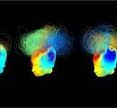 こええええええええ・・・ 植物状態の人にも意識がある:脳波解析で明らかに
