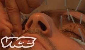 【日本の治療】  顔面に針100本!? 日本の 「針治療」 を体験してみた。 海外の反応