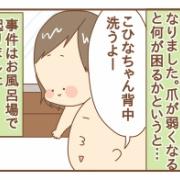 【抗がん剤副作用:爪①】黒く変色していく爪