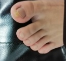 【悲報】ワイの脚、腐り始める