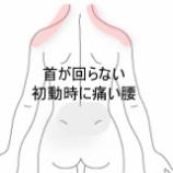 『首・腰の痛み 登別室蘭すのさき鍼灸整骨院 症例報告』の画像