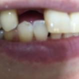 『生きてる義歯と人生哲学。』の画像