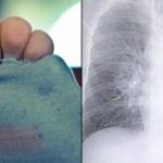 【中国】自分の臭~い靴下を毎日嗅ぎ続けた男、肺に感染症を起こし緊急入院! [海外]