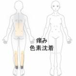 『アトピー性皮膚炎 室蘭登別すのさき鍼灸整骨院 症例報告』の画像