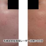 レーザー治療経過写真ブログ