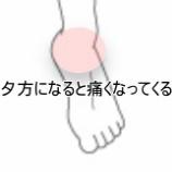 『夕方になると痛くなってくる足関節 症例報告です☆』の画像