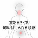 『産後の臀部痛・頭痛 室蘭登別すのさき鍼灸整骨院 症例報告』の画像