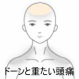 『額に起こる頭痛 室蘭登別すのさき鍼灸整骨院 症例報告』の画像