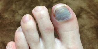 私、サンダルが履けない。足の爪が醜いから…それを見た友人が追い打ちをかけるように「めっちゃグロイ」と…