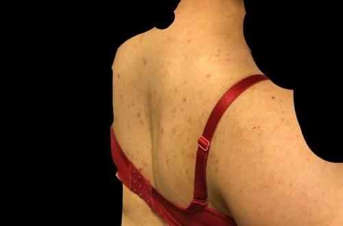 【画像】デブ女だけど背中汚すぎ死にたい…のサムネイル画像