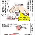 【漫画再掲】水虫の直接鏡検で菌体を見つけるコツ(ケアネット第52回)