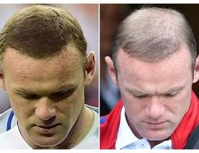 一夜にして禿げてしまう事ってあるんだな・・・。イングランド代表のルーニー、一夜にして禿げる。
