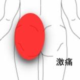 『脚が上がらない程の激痛腰痛 室蘭登別すのさき鍼灸整骨院 症例報告』の画像