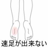 『足関節捻挫後遺症 室蘭登別すのさき鍼灸整骨院症例報告』の画像