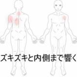 『肩上部から広がった痛み 室蘭登別すのさき鍼灸整骨院症例報告』の画像