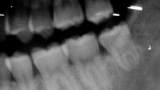【悲報】歯の詰め物が取れた…保険未加入やし終わりや…
