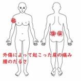 『≪外傷にも有効な鍼灸治療≫~ドアに挟まれたことによる肩の痛み~』の画像