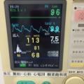 303.インプラント手術時における生体モニタリングについて