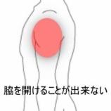 『打撲した肩 室蘭登別すのさき鍼灸整骨院 症例報告』の画像