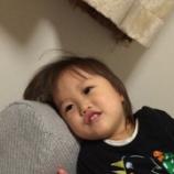 『【目の病気】娘の霰粒腫』の画像