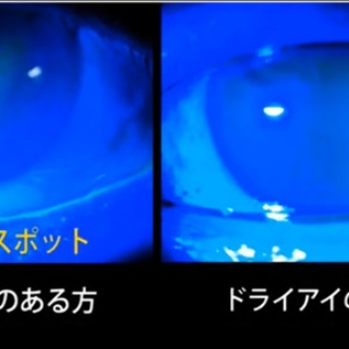 ある奈良県の眼科医が目について書いたブログ