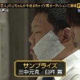 『三ちゃんこと三中元克が顔を叩かれ腫れて湿布!コンビ「サンプライズ」の相方に批判の声【めちゃイケ画像】』の画像