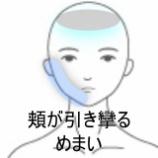 『顔面神経麻痺 頬が引き攣る 室蘭登別すのさき鍼灸整骨院 症例報告』の画像