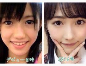 【AKB48】まゆゆって整形だったんだな…
